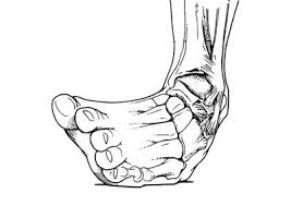 ankle - inversion