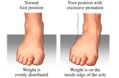 ankle overpornation