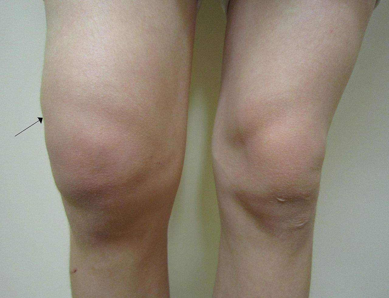 knee effusion