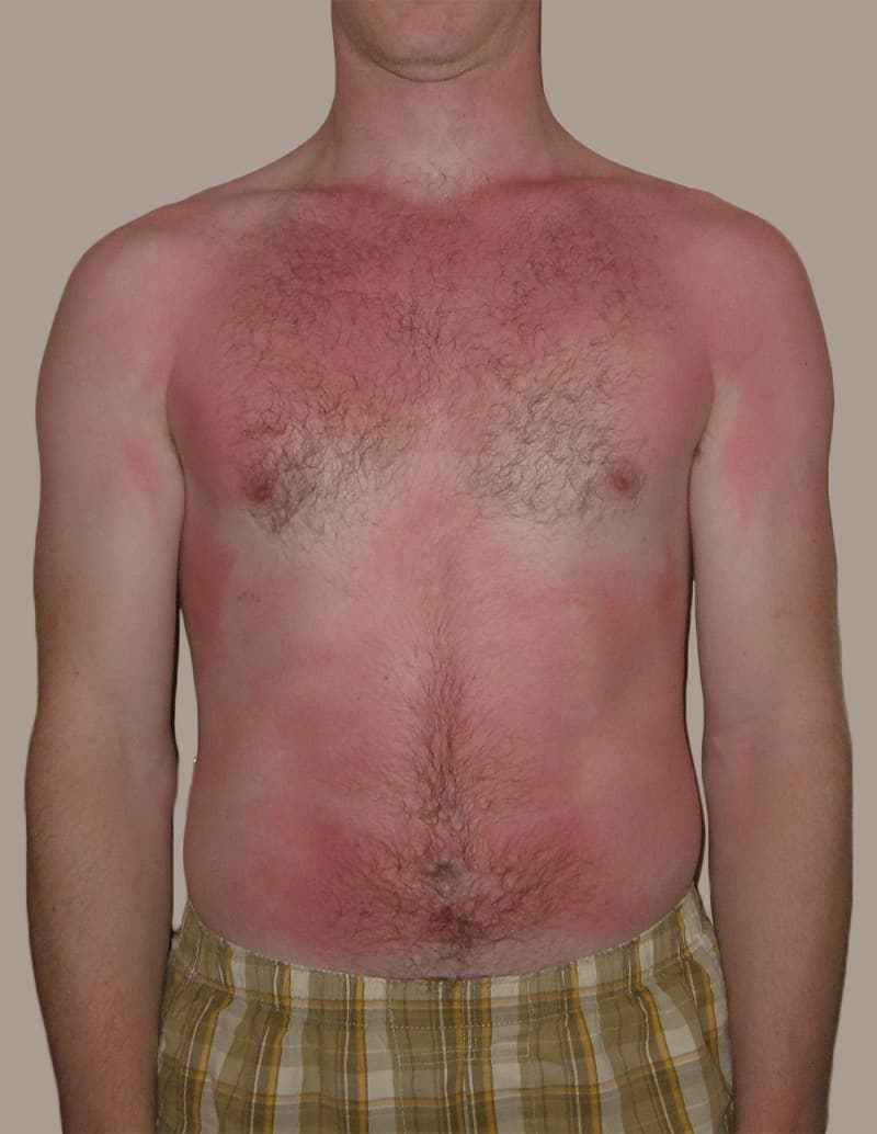 sunburn - front chest